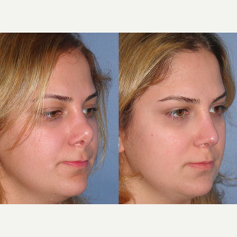 25-34 year old woman treated with Revision Rhinoplasty after 3521495