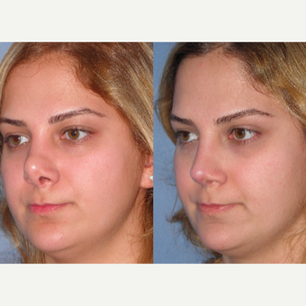 25-34 year old woman treated with Revision Rhinoplasty before 3521495