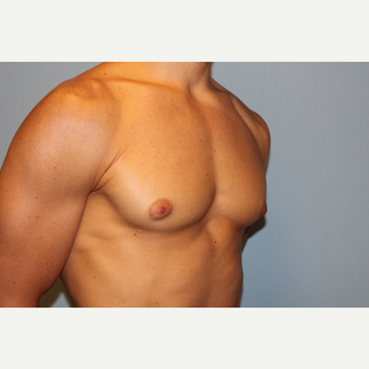 25-34 year old man treated with Male Breast Reduction before 3565072