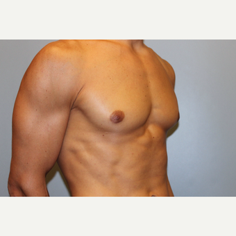 25-34 year old man treated with Male Breast Reduction after 3565072