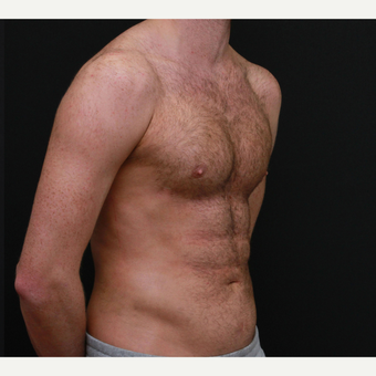 35-44 year old man six packs operation after 3179348