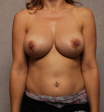Breast Implant Revision after 1037458