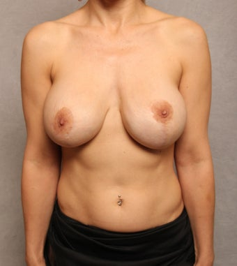 Breast Implant Revision before 1037458