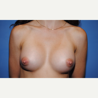 25-34 year old woman treated with Breast Augmentation after 3763078