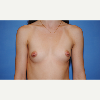 25-34 year old woman treated with Breast Augmentation before 3763078