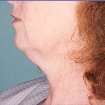 45-54 year old woman treated with Facelift before 3476080