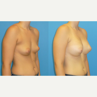 25-34 year old woman treated with Breast Augmentation after 3454770