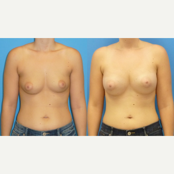 25-34 year old woman treated with Breast Augmentation before 3454770