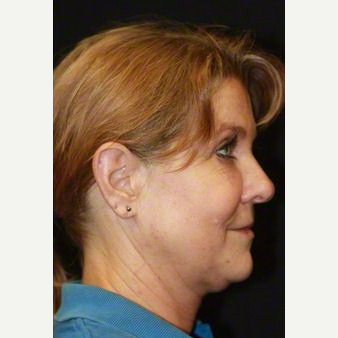 50 year old woman treated with SMAS Facelift before 3629663