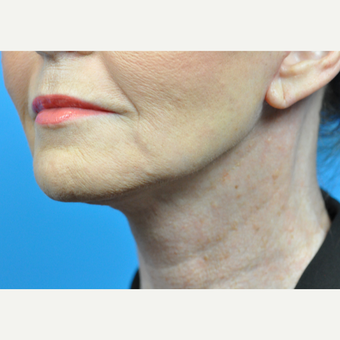 55-64 year old woman treated with Facelift after 3775631