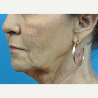 55-64 year old woman treated with Facelift before 3775631