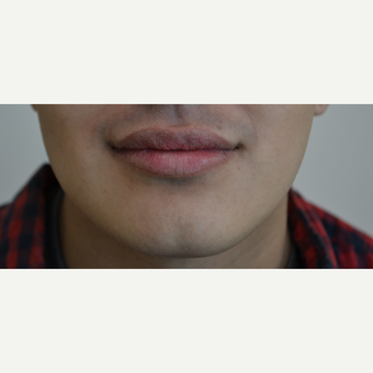 18-24 year old man treated with Lip Augmentation after 3816536