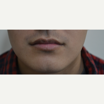 18-24 year old man treated with Lip Augmentation before 3816536