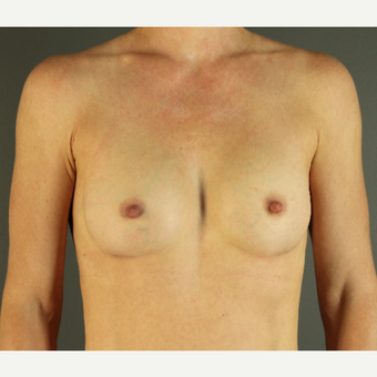 35-44 year old woman treated with Breast Implants after 3026381