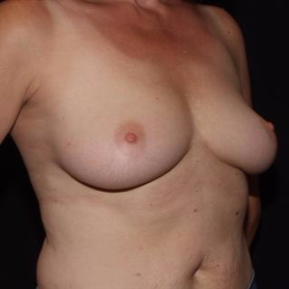45-54 year old woman treated with Breast Implants before 3506835