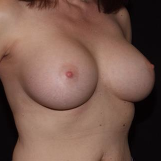 45-54 year old woman treated with Breast Implants after 3506835