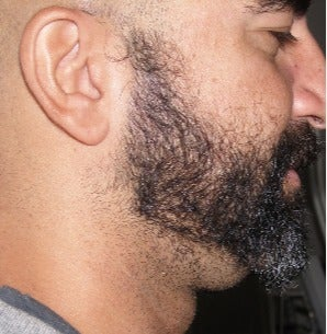 25-34 year old man treated with Lipodissolve for chin fat before 3209000