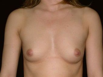 Breast augmentation before 293948