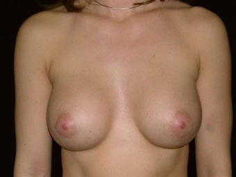 Breast augmentation after 293948