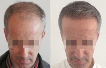 FUE Hair tranplantation 3000+ grafts  after 1051686