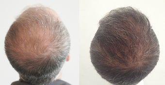 FUE Hair tranplantation 3000+ grafts  1051686