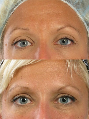 Botox for frown lines and crow's feet before 56683