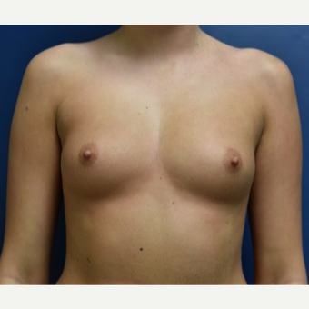 18-24 year old woman treated with Breast Augmentation before 3844024
