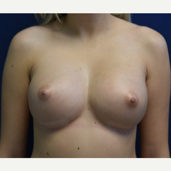 18-24 year old woman treated with Breast Augmentation after 3844024