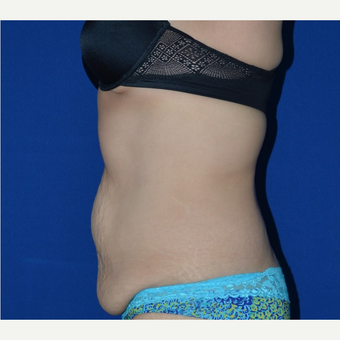 45-54 year old woman treated with No-Drain Tummy Tuck before 3655768