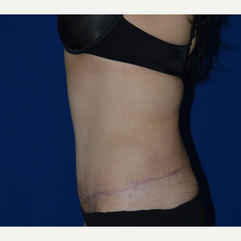 45-54 year old woman treated with No-Drain Tummy Tuck after 3655768