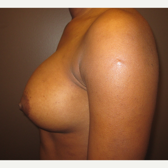 18-24 year old woman treated with Breast Implants after 3418325