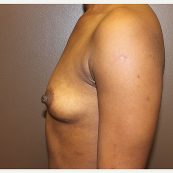 18-24 year old woman treated with Breast Implants before 3418325