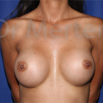 25-34 year old woman treated with Breast Augmentation after 3550599