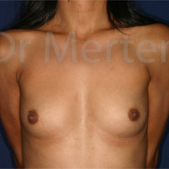 25-34 year old woman treated with Breast Augmentation before 3550599