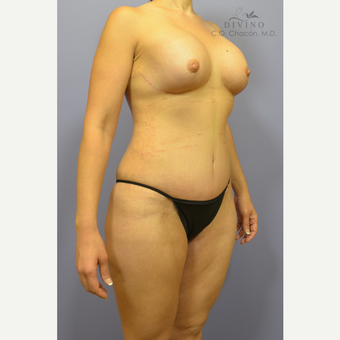 35-44 year old woman treated with Mommy Makeover after 3421589