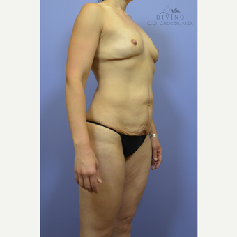35-44 year old woman treated with Mommy Makeover before 3421589