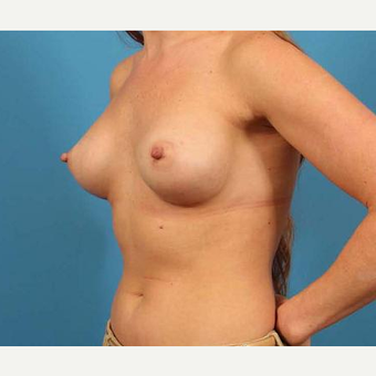 28 year old woman treated with Breast Implants after 3103127