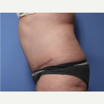 45-54 year old woman treated with Tummy Tuck after 3505978