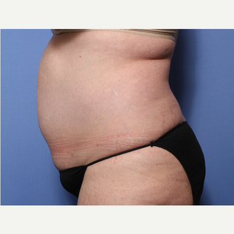 45-54 year old woman treated with Tummy Tuck before 3505978