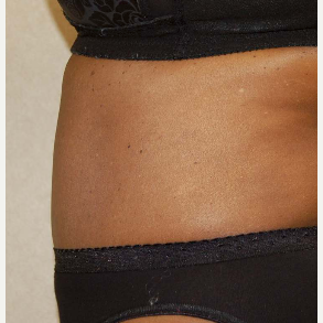 Tummy Tuck after 2121936
