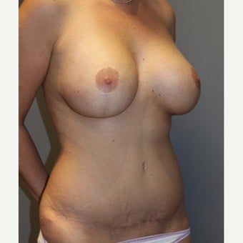 25-34 year old woman treated with Mommy Makeover after 2088696
