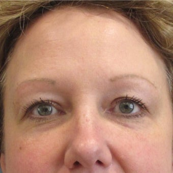 45-54 year old woman treated with Restylane to the Tear Trough (lower eyelids) after 2035955