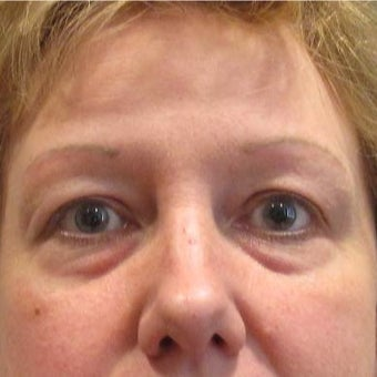 45-54 year old woman treated with Restylane to the Tear Trough (lower eyelids) before 2035955