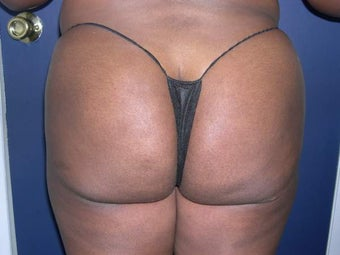 Buttock Augmentation after 330215
