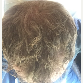 35-44 year old man treated with FUE Hair Transplant after 3062434