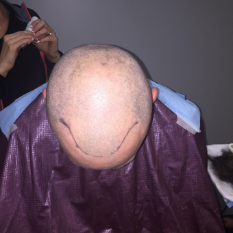 35-44 year old man treated with FUE Hair Transplant before 3062434