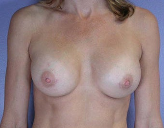 Breast Augmentation after 281421