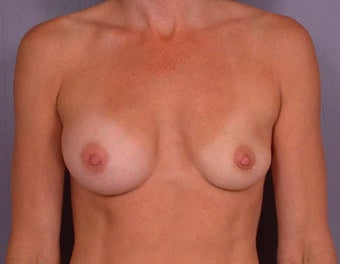 Breast Augmentation before 281421