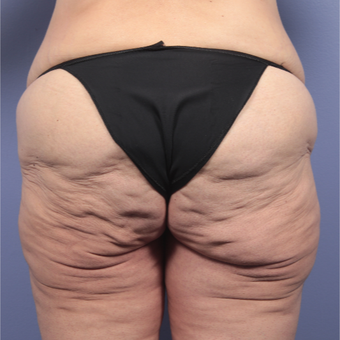 45-54 year old woman treated with Body Lift before 3666059