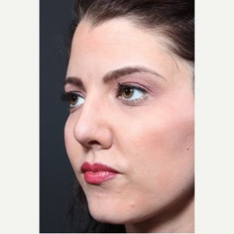 25-34 year old woman treated with Revision Rhinoplasty 1851731